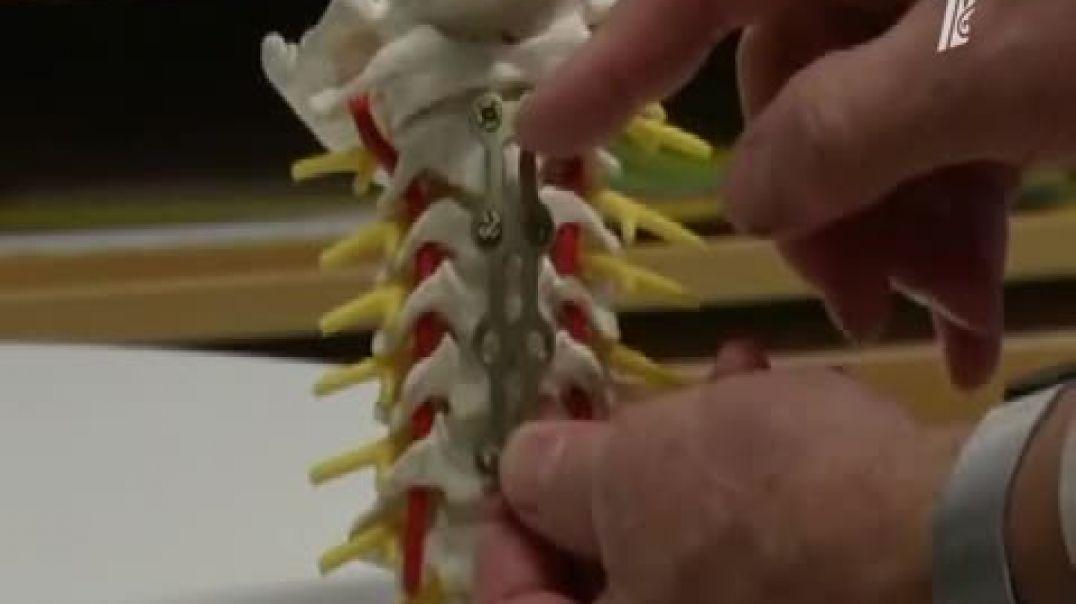 Медицинский клей для кости.mp4